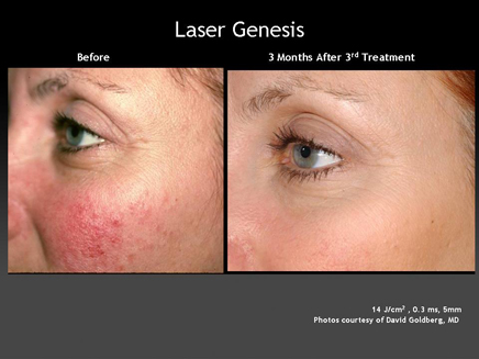 Laser Genesis Skin Therapy Treatment