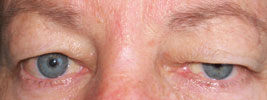 how to avoid droopy eyelids from botox