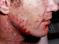 steroid creams used for psoriasis